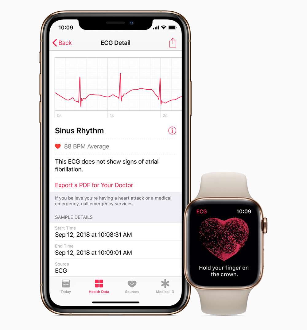 Apple Watch Series 4 Ekg Funktion