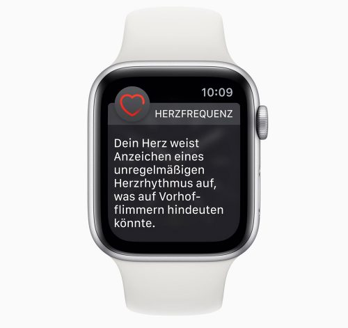 Apple Watch Unregelmaessiger Herzrthythmus
