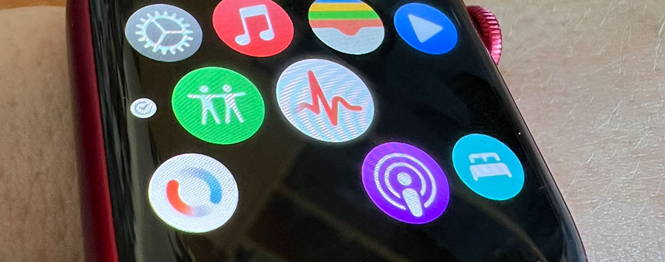 Keine Icons auf der Watch: Apple aktualisiert Apps selbstständig